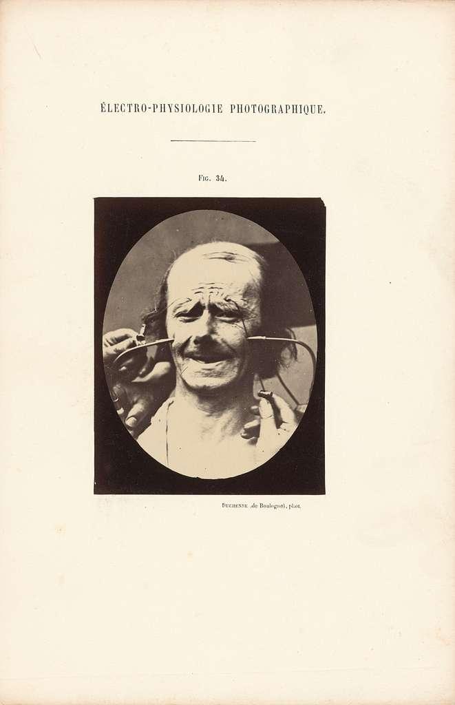 Électro-Physiologie Photographique, Figure 34