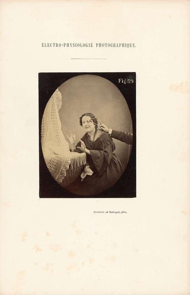 Électro-Physiologie Photographique, Figure 79
