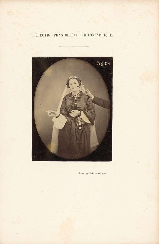 Électro-Physiologie Photographique, Figure 84